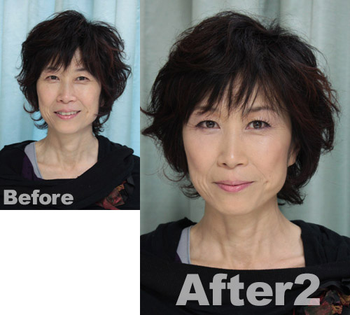 AKIsan-before-after2