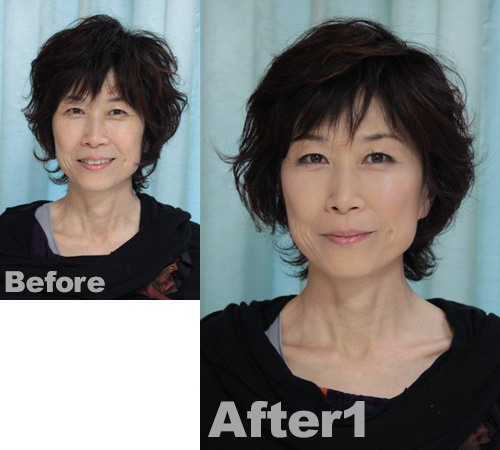 AKIsan-before-after1