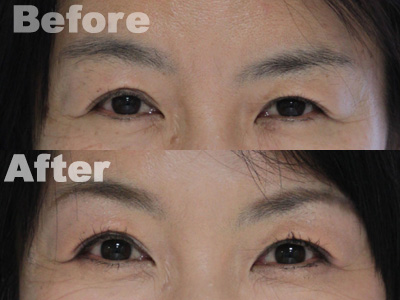 Osan-目元-before-after