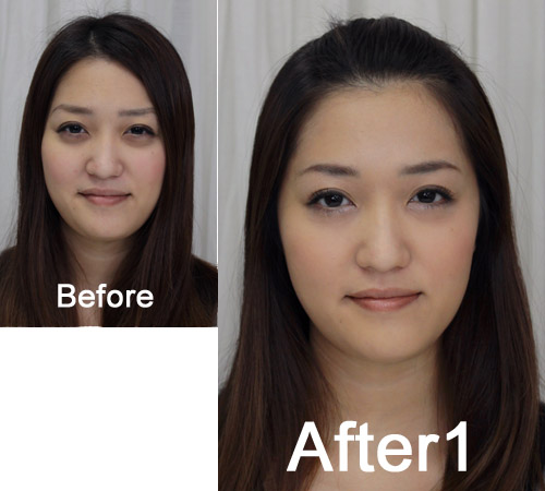 fuu-before-after1