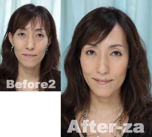 HIROsan-before-after-za