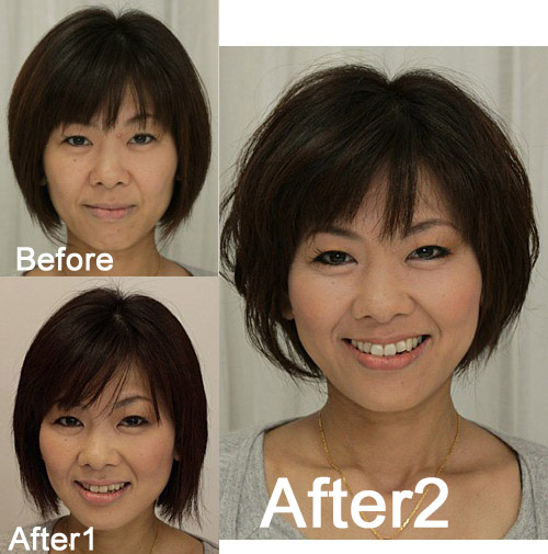 mai-before-after1-2