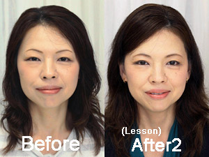megumi-before-after2