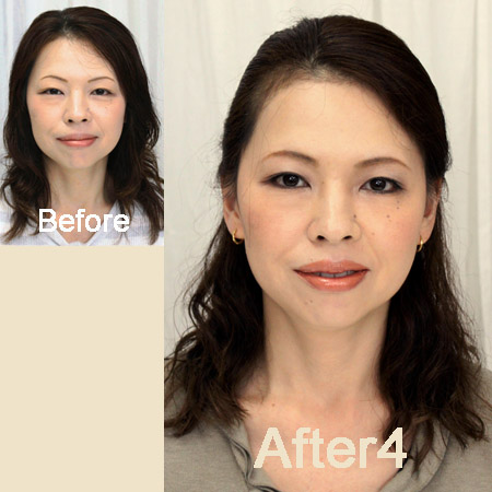 megumi-before-after4