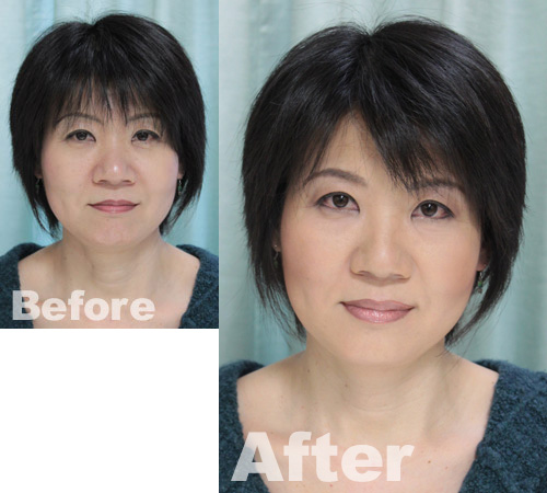 muku-before-after