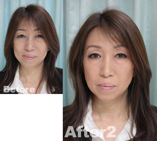 MYUsan-before-after2