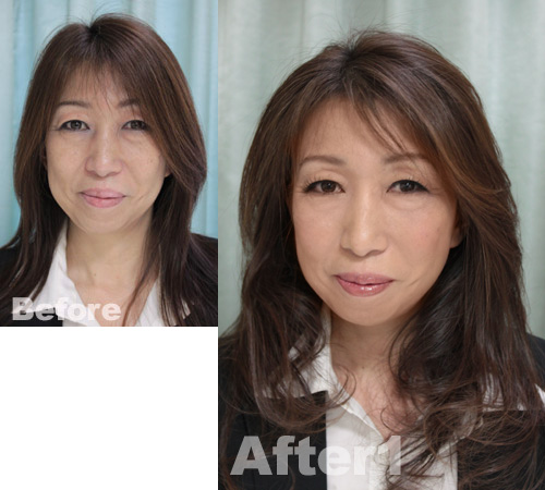 MYUsan-before-after1