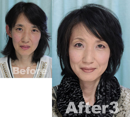 naosan-before-after3