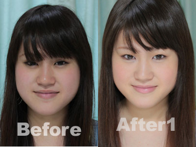 sa-yachan-before-after-1