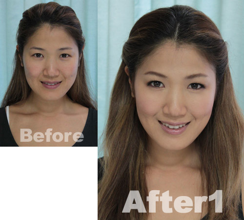 yumi-before-after1