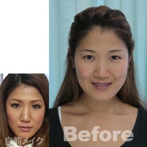 yumi-自前メイク&before
