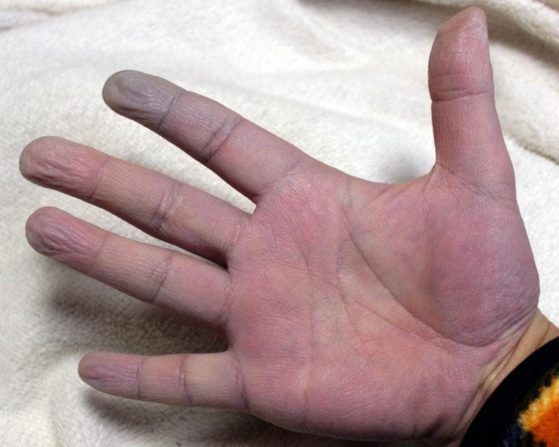 チアノーゼの右手・800×640