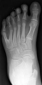 6本指の足 のX線写真
