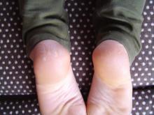 郡山・経絡足つぼ脚もみマッサージ士_たけろぐ_出張専門_3分でできる骨盤矯正で体のつまり、筋肉のコリをとって快適①両足が整いました