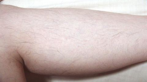 脱毛器ケノンで左足の内側