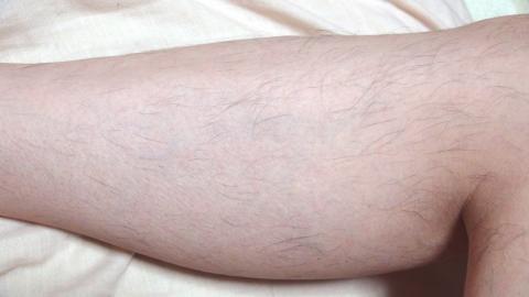 脱毛器ケノンで右足の内側
