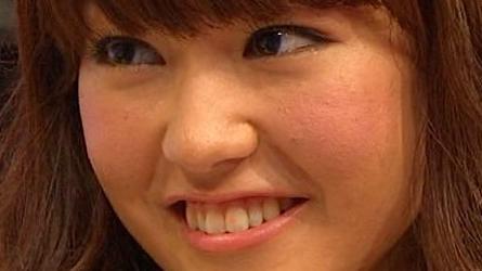 桐谷美玲の肌荒れ画像2