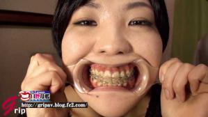 口腔ドキュメント 歯列矯正中の女/美紀・21歳(矯正5年目)