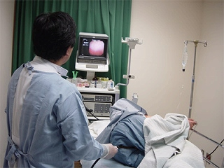 s-大腸内視鏡検査