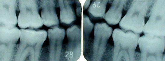 臼歯の咬翼法