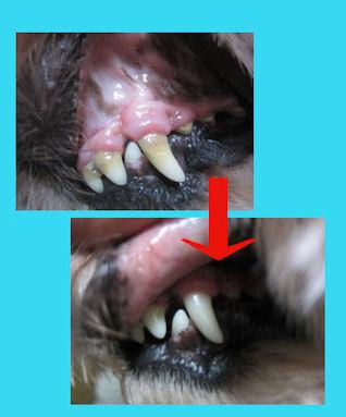 2012.9.6歯
