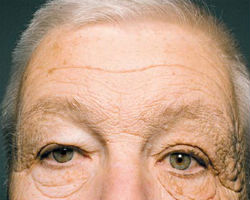 The result of driving a truck for 28 years exposing only half of your face to direct sunlight