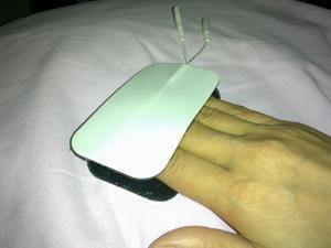 elektrot therapy