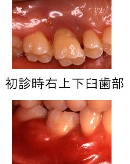 初診時右上下臼歯部