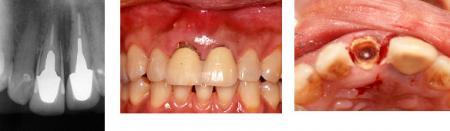 初診時右上前歯