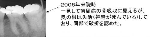 2006年来院時