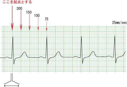 normal_ecg_pattern_hr.png
