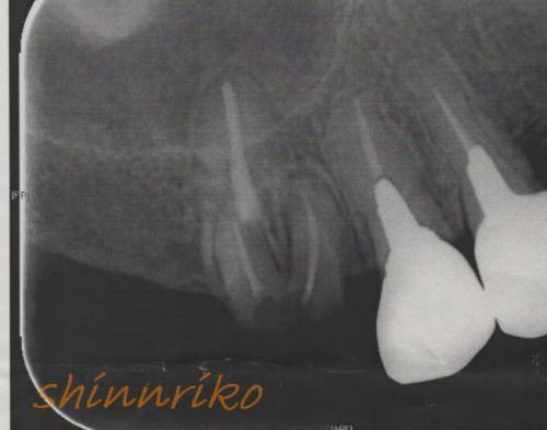 歯20130125