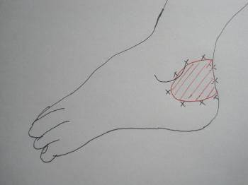 足関節打撲の図