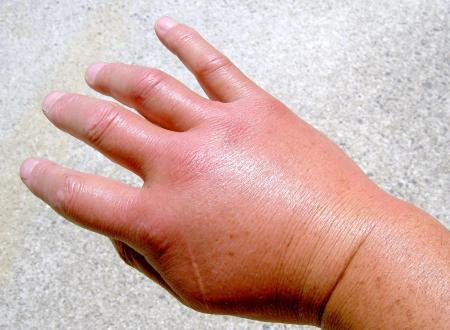腫れあがった右手