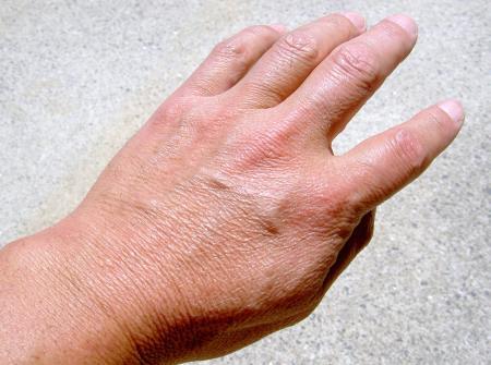 正常な左手