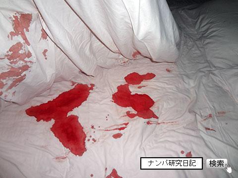 (ナンパ画像) 処女の出血